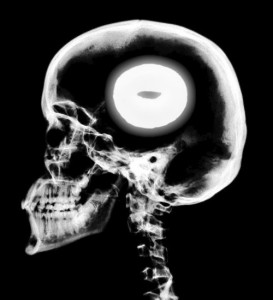 bagel-brain-x-ray